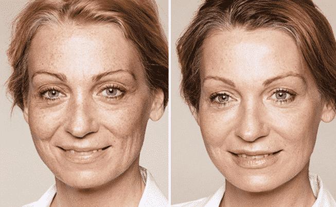 aminozuren voor je huid