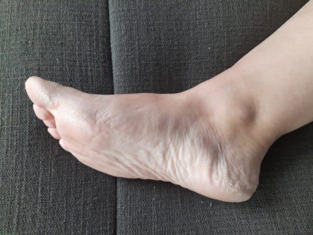 eelt op voeten verwijderen